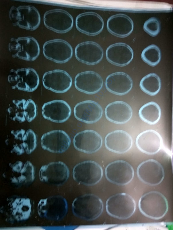 CT scan of brain after brain strok