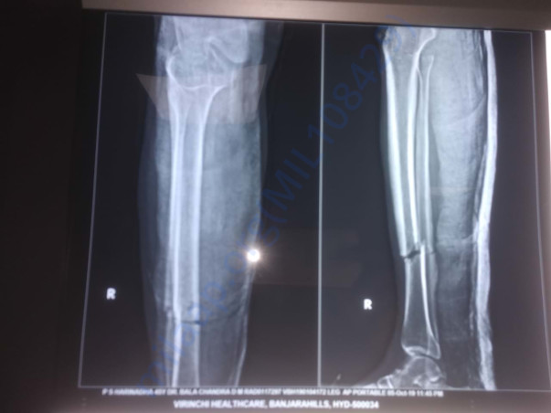 X ray of damaged right leg to under go surgery