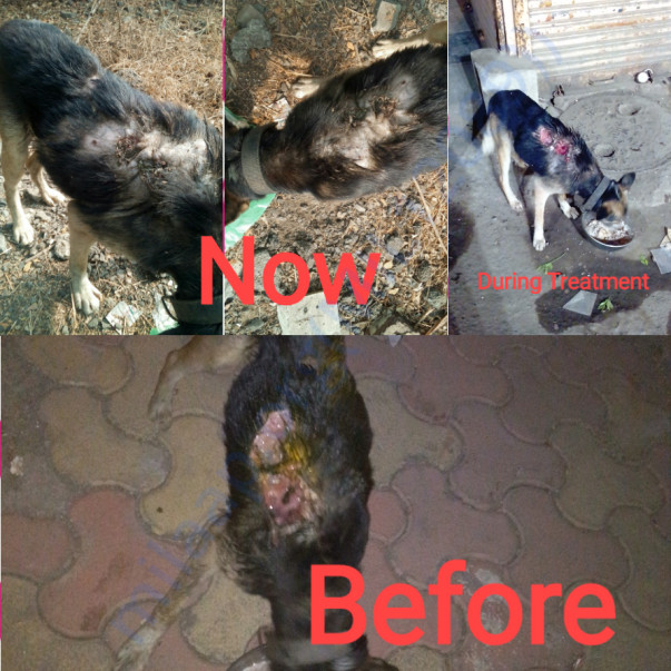 Burns wound turned to Maggots wound case completely healed