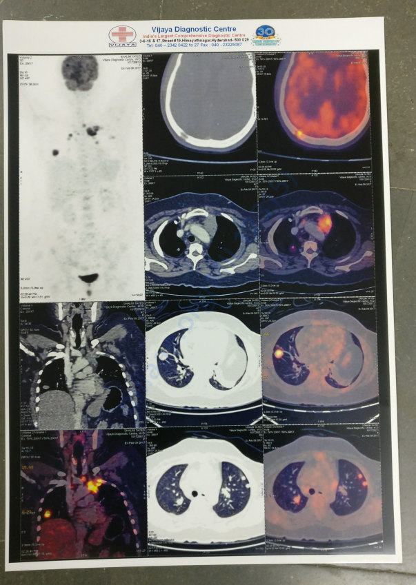 PET SCAN FILM