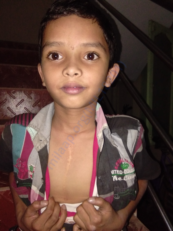 images of vardhan who got operated for his heart