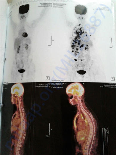 Pet Scan Report - 3