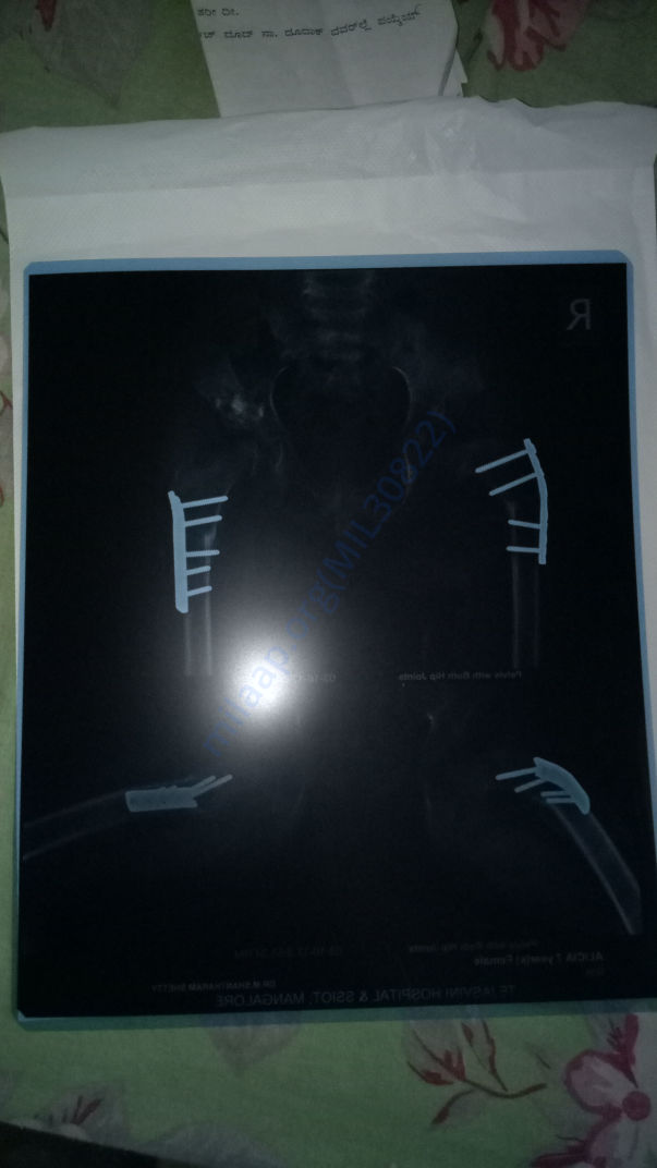 After surgery xray