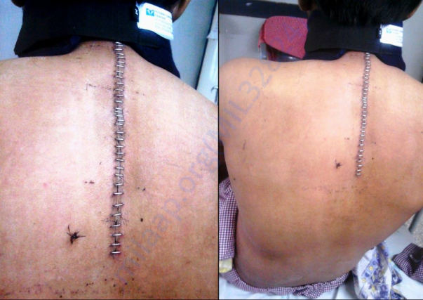 Laminectomy done from C7 to T6