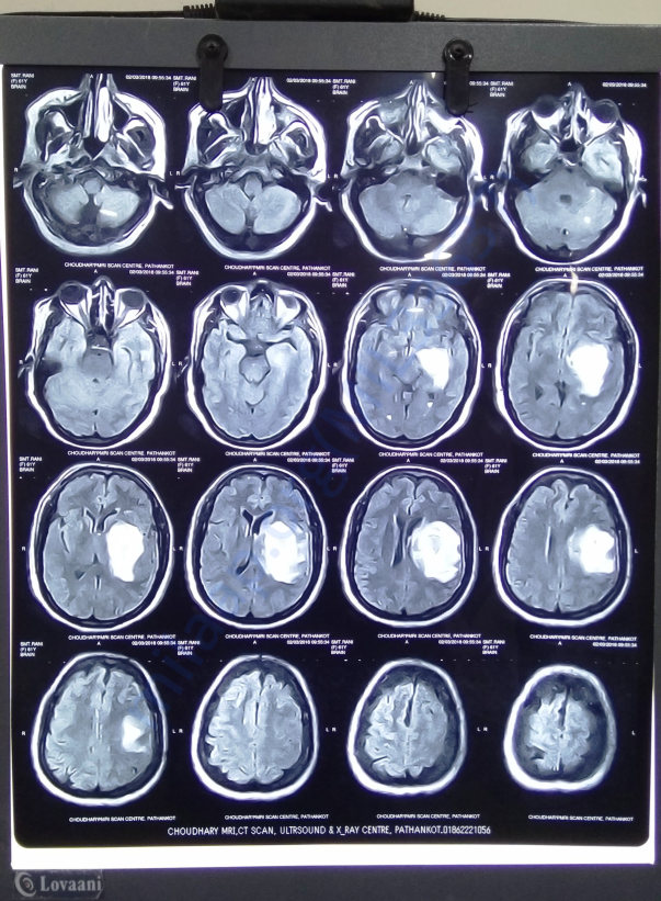 Citi scan of brain blood clot before surgery