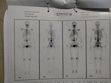 Bone Scan report 2