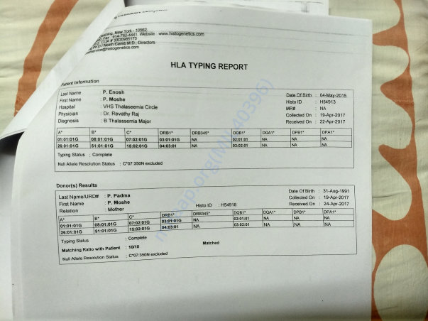 HLA matching report