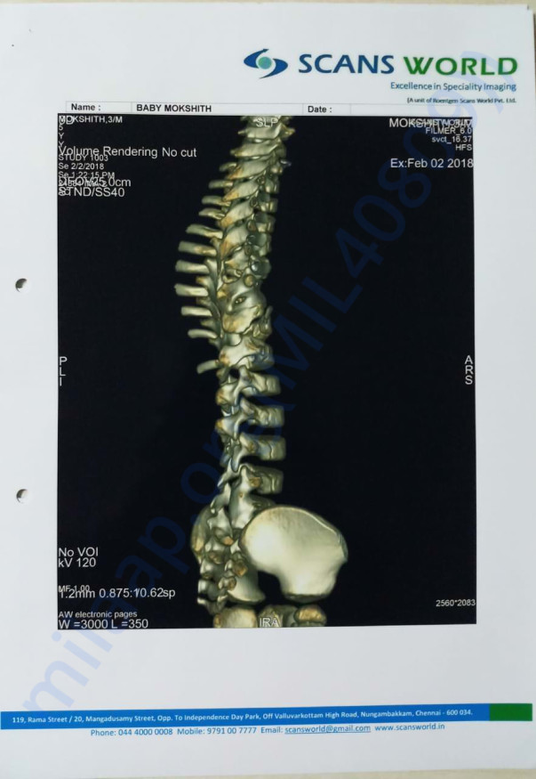 Twisted spine pic 1