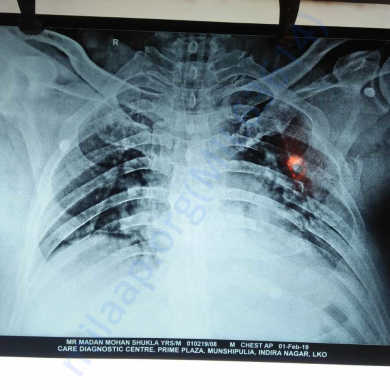 X-Ray Chest