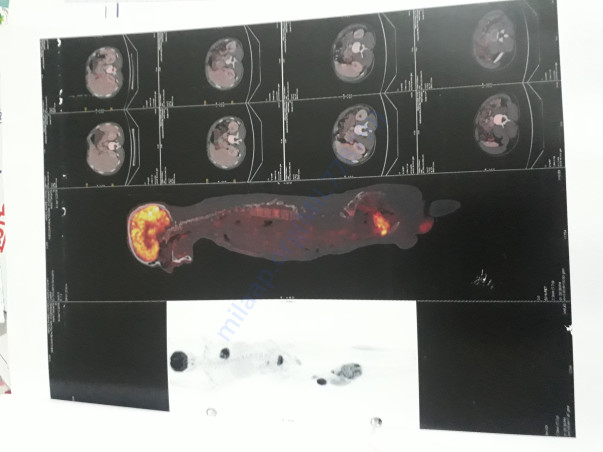 Pet scan of mridul pandey