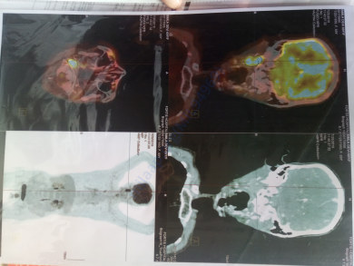 Pet scan picture