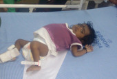 10-month-old Rithvika Cannot Bear The Pain Of Her Bloated Stomach, A Liver Transplant Will Save Her