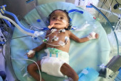 This 4-month-old Baby Will Not Survive Without Ventilator Support