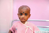 4-Year-Old Reddy Raj Can Finally Beat Cancer And Go Home With Your Help