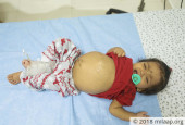 Baby Pranavi May Not Live Until 1st Birthday if She Does Not Get An Urgent Liver Transplant