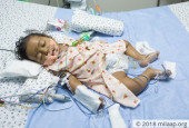 After Losing 3 Children, Jaswanth's Parents Are Fighting Again To Save His Life