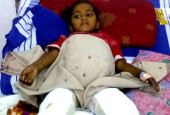 5-Year-Old Playing With A Matchbox Caught On Fire And Is Now Suffering Severe Burns
