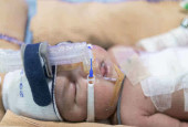 Manisha's 6-Day-Old Baby Was Born With Her Intestines Outside And Needs Treatment To Live