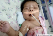 Father Forced To Sleep On The Roadside Struggles To Save Baby Girl Born With Heart On The Wrong Side