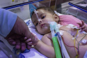This 6-Month-Old Won't Be Able To Breathe At All Because Her Lungs Are Being Crushed Inside