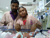 This Premature Baby's Lungs Are Severely Underdeveloped And She Needs Urgent Help To Breathe