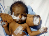 Born Struggling To Breathe, This 21-Day-Old Premature Baby Needs Urgent Treatment To Live