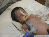 Only Few Hours Are Left For This 7-Day-Old Baby To Get A Life-Saving Surgery