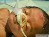 3-Month-Old Who Suffocates Because Her Windpipe  Has Collapsed Is In Need Of Urgent Help