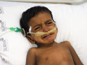 Deadly Swine Flu Will Take 2-Year-Old's Life Without Urgent Help