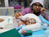Premature Baby Girl With Underdeveloped Vital Organs Will Not Survive Without Ventilator Support