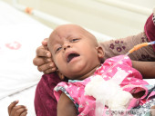 This Cancer-Ridden Baby Girl Will Not Make It To Her Next Birthday Without Urgent Treatment