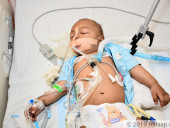 6-Month-Old Who Lost Consciousness Due To Brain Infection Needs Your Help To Survive