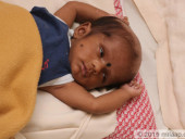 Relatives Refuse To Help Our Baby Because He Looks Different, But He Needs  Brain Surgery