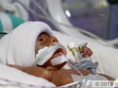 This Palm-sized Miracle Preemie Fights To Stay Alive While Parents Plead For Help