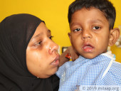 Boy Who Hasn't Been Able To Drink A Sip Of Water In 5 Years, Needs Help For Surgery