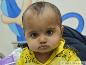 If This Baby Doesn't Get Life-Saving Treatment Now, He May Not Get Another Chance