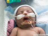 He Lost His Twin Sister, Now This Newborn Fights To Survive