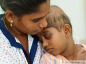 Single Mother Struggles To Save Her Daughter From Cancer That Displaced Her Eyeballs