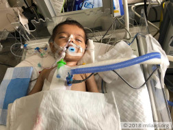 6 month old Baby Kirti needs an urgent heart surgery to breathe again
