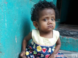 Help Baby Joshna Fight A Painful And Fatal Liver Disease
