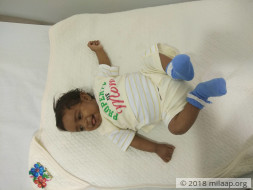 This 4 month old baby needs a liver transplant to survive