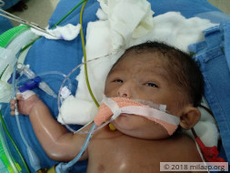 Help Sushma and Kranthi save their 4 day old baby boy