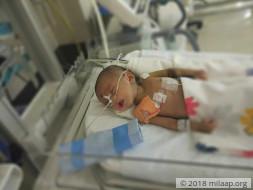 Help 3-month-old Manak fight heart disease