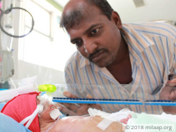 7-Day-Old Twins Need Help To Be Able To Breathe On Their Own And Live