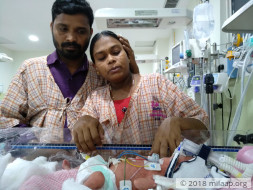 Help this premature baby who is struggling to breathe in the ICU