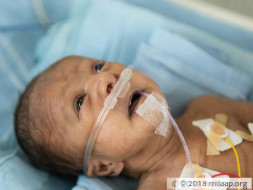 Premature Baby Born With A Hole In The Heart Needs Treatment