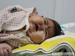 Help 5 months old Sanjana to get a Bone Marrow Transplant