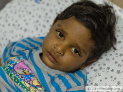 4-year-old Vamshi is fighting a severe liver disease and needs help