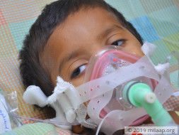 These Parents Are Skipping Meals To Save Money For Their Son's Life