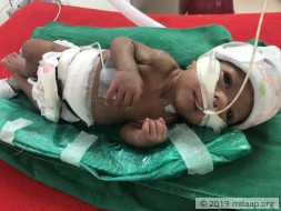 Help Vishakha and Vinayak save their premature baby boy